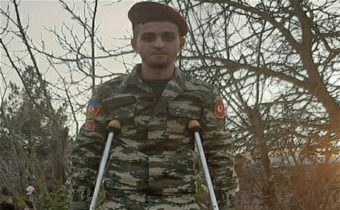 ŞOK QƏRAR: Bir ayağını itirmiş 19 yaşlı qaziyə III qrup əlillik verildi - FOTOLAR
